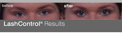 LashControl Before and After results